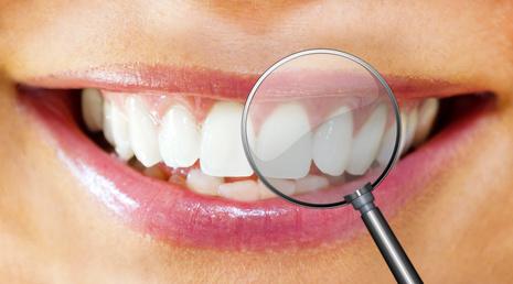 Parodontitis – Eine unscheinbare Gefahr